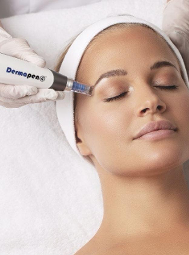 skin needling - dermapen 4 - image 01 - Face & Body Adelaide