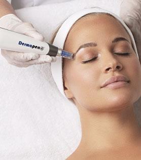 skin needling - dermapen 4 - image 02 - Face & Body Adelaide