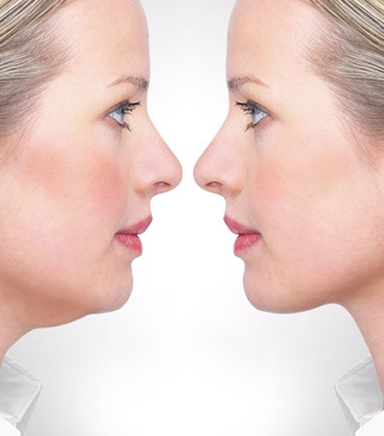 double chin reduction - chin fat removal