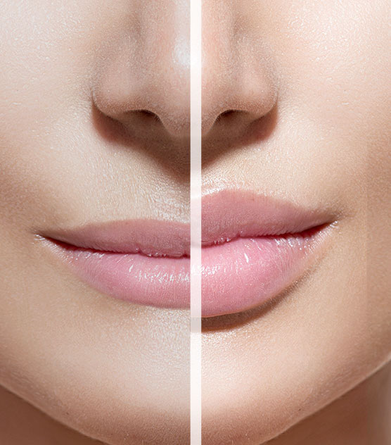 lip fillers 01 - Face & Body Adelaide
